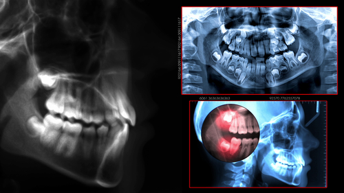 dental scan during preliminary planning