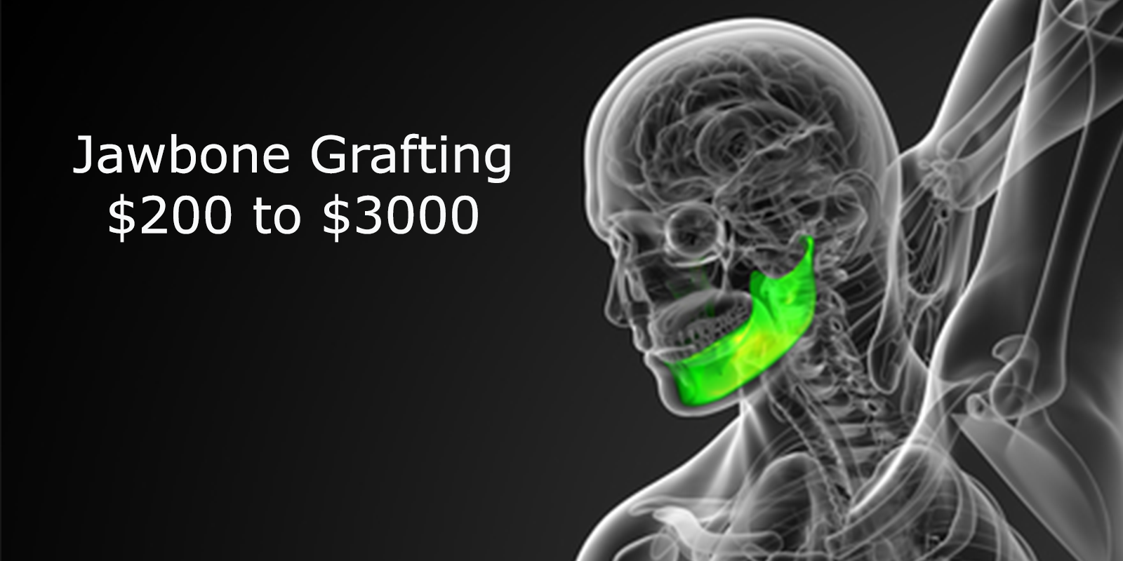 Bone Grafting Cost