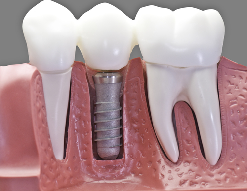 traditional root form dental implant