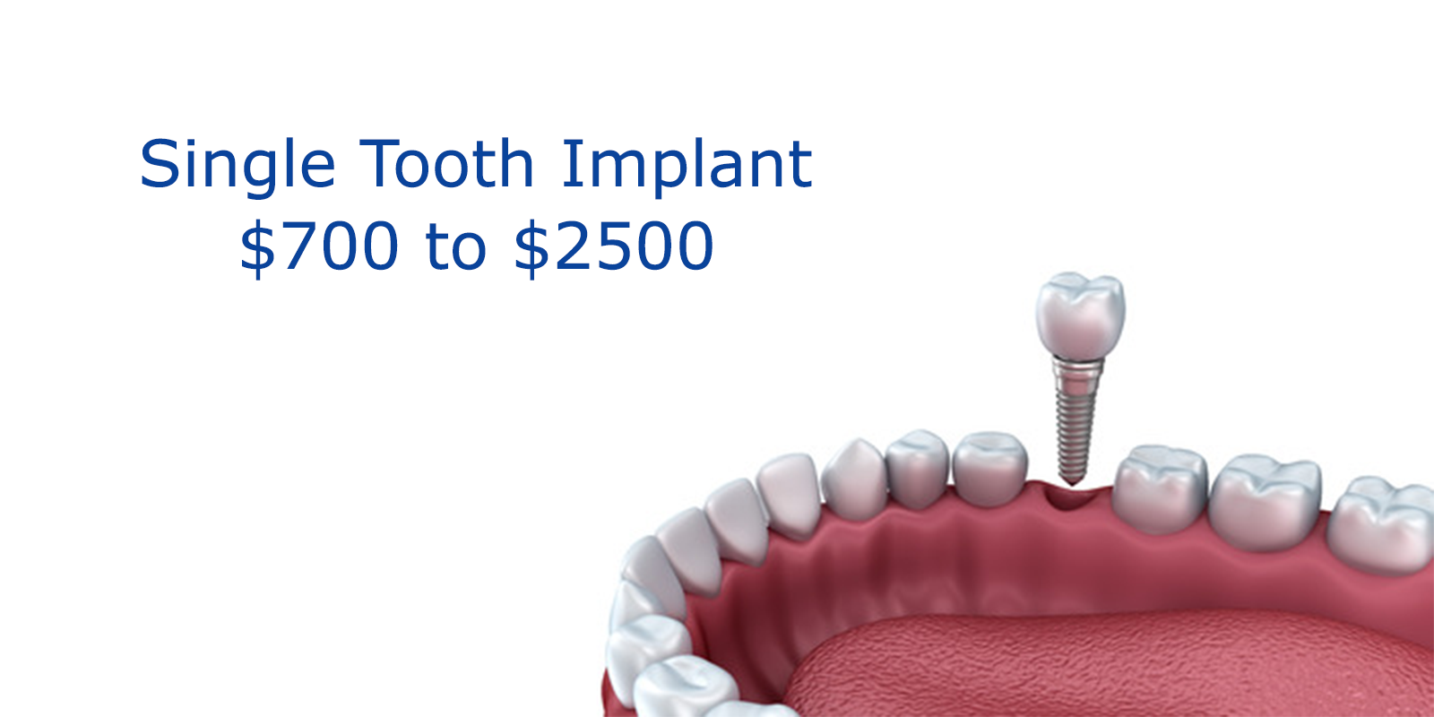 Individual Implant Cost