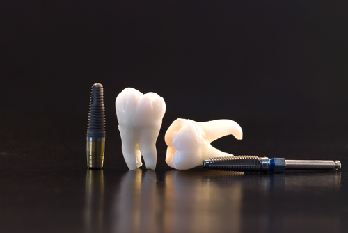 Real Human Wisdom teeth and  titanium implants