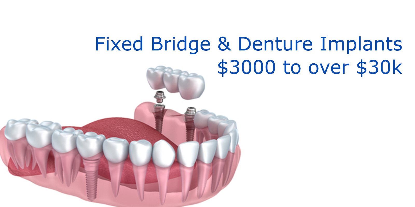Multiple Dental Implants Cost
