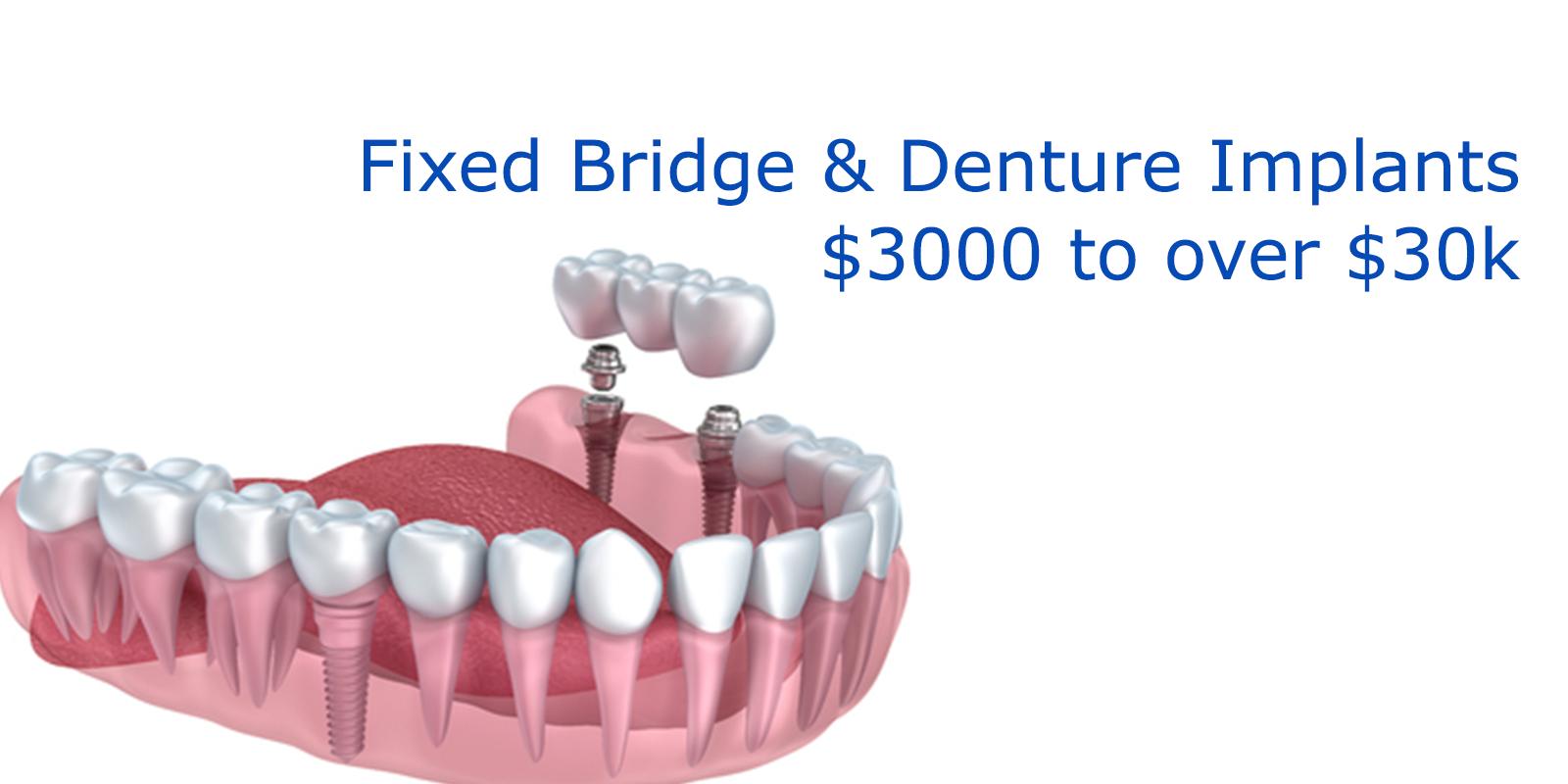 Multiple Dental Implants Cost